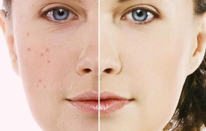 درمان  تضمینی جوش های صورت و بدن