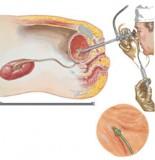 التهاب لگنچه و کلیه (پیلونفریت)