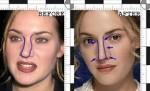 حقایقی درباره عمل زیبایی بینی