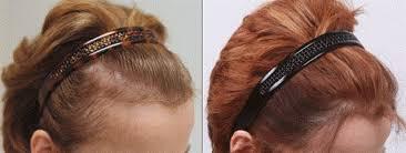 علل ،عوامل و علاج ریزش مو در زنان