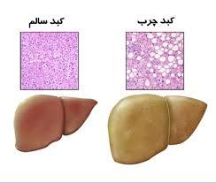 دارویی جدید برای درمان مشترک کبد چرب و سرطان کبد
