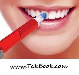 درباره بلیچینگ یا سفید کردن دندان چه می دانید ؟